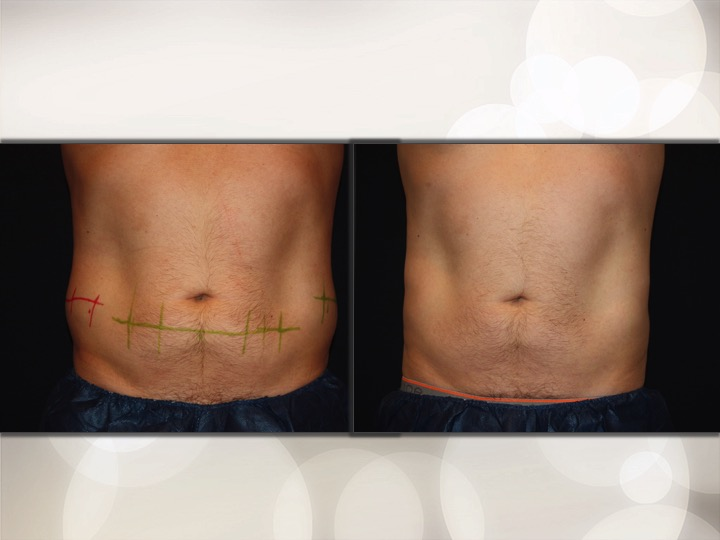 Coolsculpting – UCosmetic
