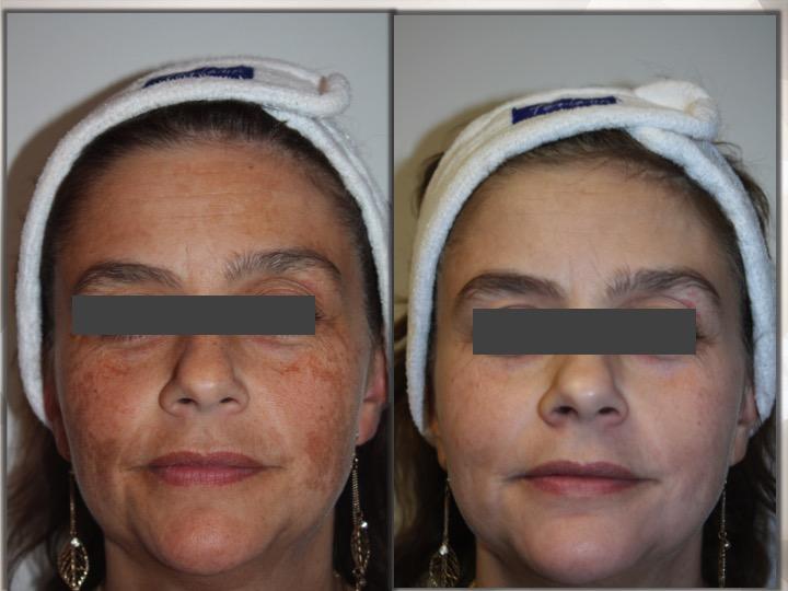 Skincare Consult – UCosmetic